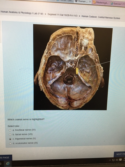 anatomy and physiology 2 lab 1