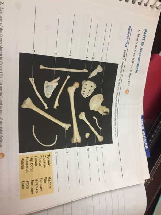 solved  identify the bones in this random arrangement  usi