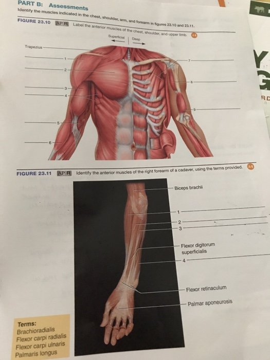 Solved Identify The Muscles Indicated In The Chest Shoul