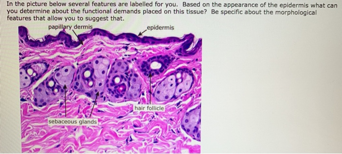 In the picture below several features are labelled for you. Based on the appearance of the epidermis what can you determine a