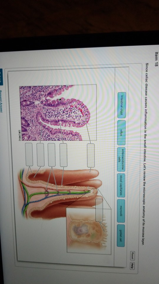 Solved: Item 18 Since Celiac Disease Causes Inflam N In Th ...