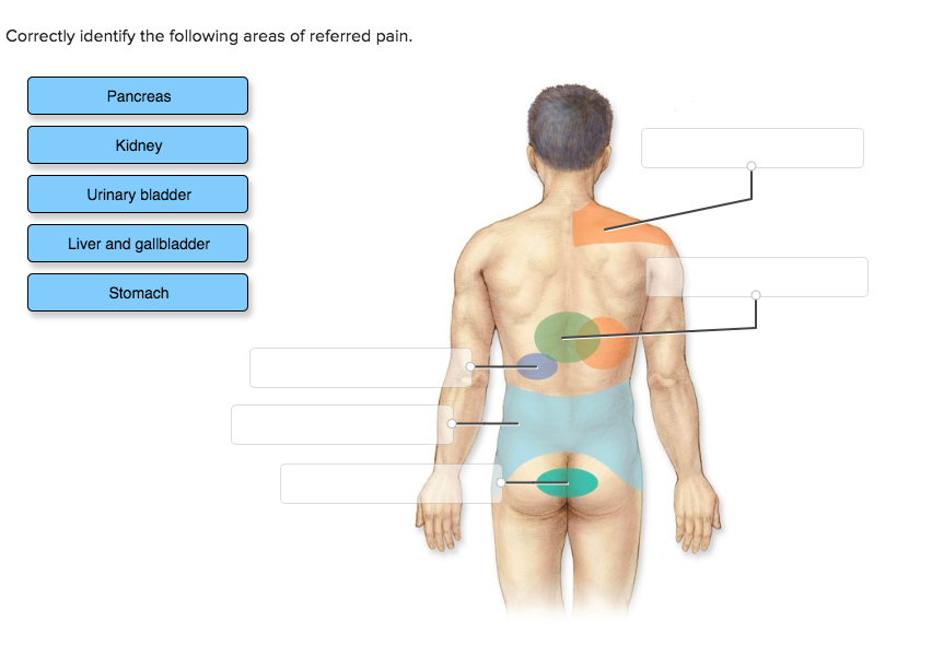 Solved Correctly Identify The Following Areas Of Referred Chegg Com