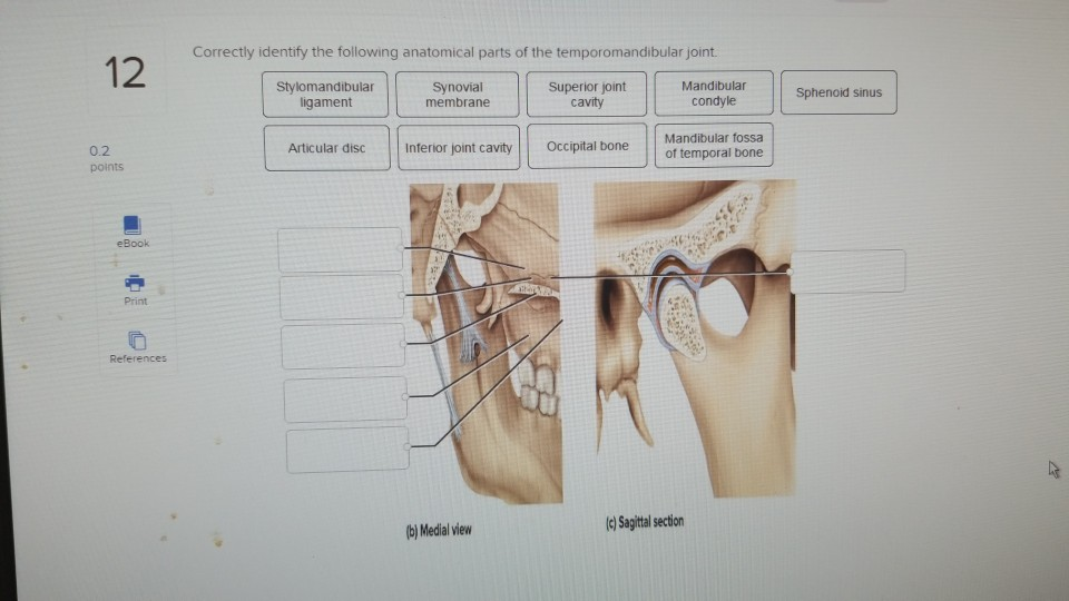Solved  Correctly Identify The Following Anatomical Parts