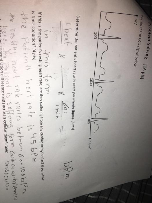 Solved: Consider The ECG Signal Below: Determine The Patie