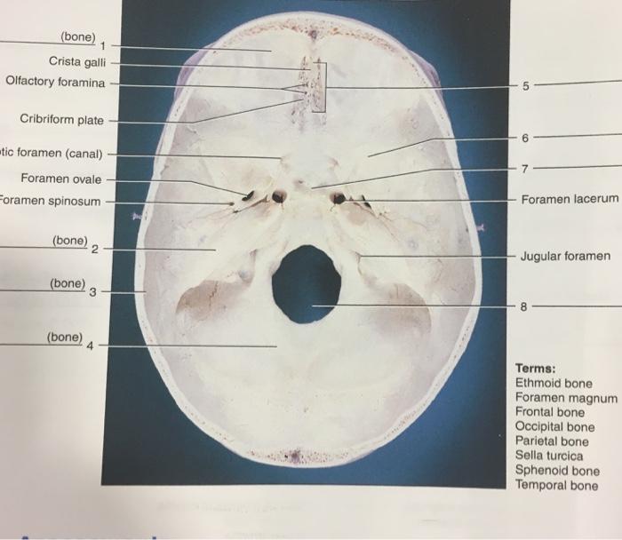 Solved Bone Crista Galli Olfactory Foramina Cribriform P