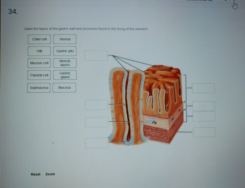 Solved: 34. Label The Layers Of The Gastric Wall And Struc ...