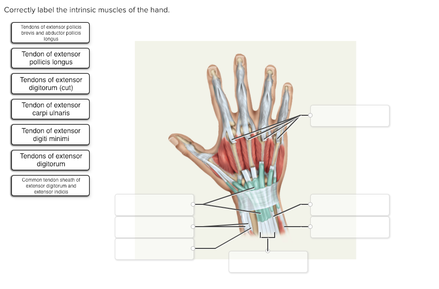 Solved Correctly Label The Intrinsic Muscles Of The Hand