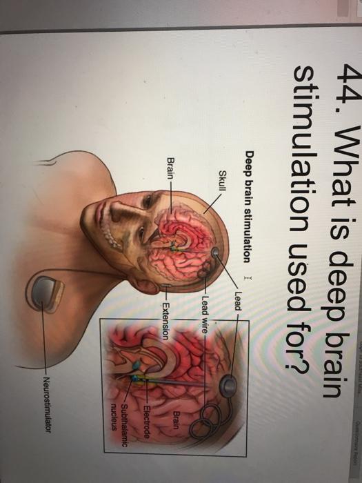 44. What is deep brain stimulation used for? Deep brain stimulation I Lead Skull Lead wire Brain Extension Neurostimulator