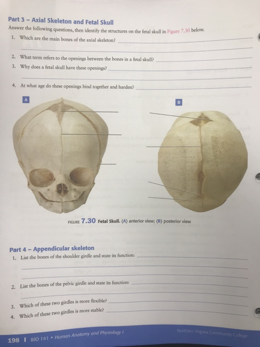 Solved: Part 3-Axial Skeleton And Fetal Skull Answer The F ...