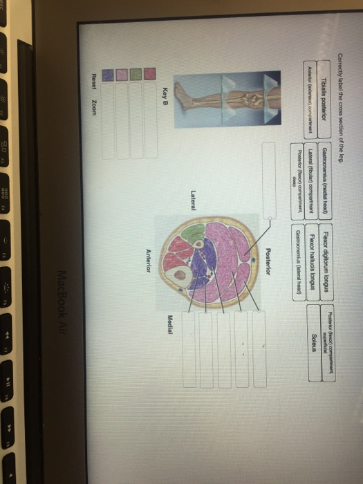 Cheap Textbooks Online >> Solved: Correctly Label The Cross Section Of The Legs. | Chegg.com
