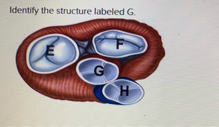 Identify the structure labeled G G