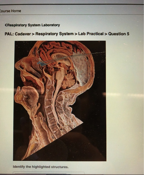 Solved: Course Home Respiratory System > Lab Practical>Que