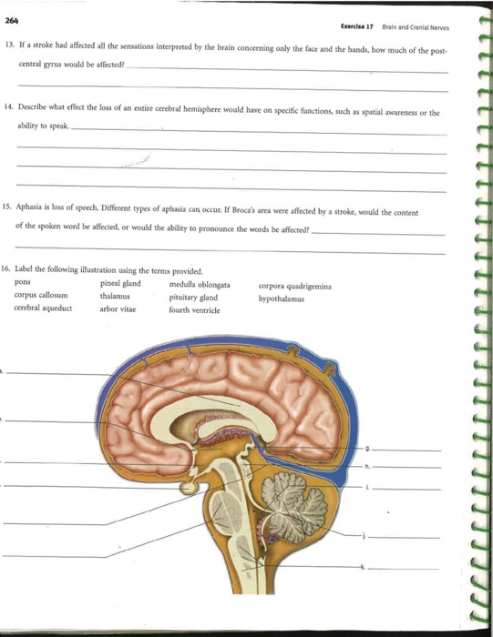 Solved: 264 Exercise 17 Brain And Cranial Nerves 13  If A
