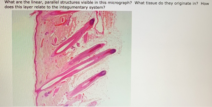 What are the linear, parallel structures visible in this micrograph? What tissue do they originate in? How does this layer re