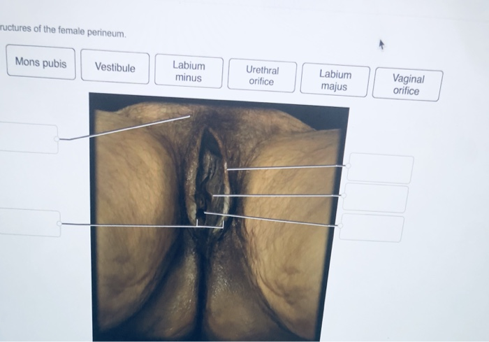 Solved Label The Structures Of The Female Perineum Chegg