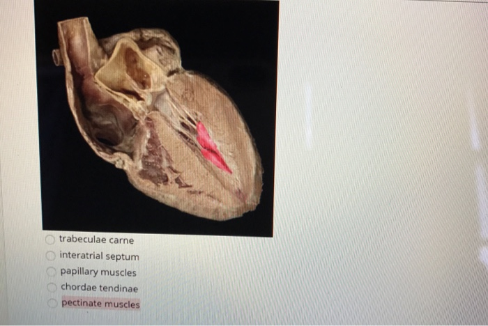Solved Trabeculae Carne Interatrial Septum Papillary Musc
