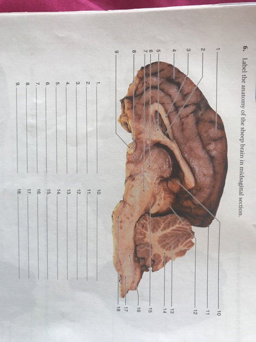 Solved 6 Label The Anatomy Of The Sheep Brain In Midsagi