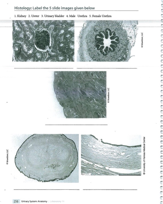 Solved: Histology: Label The 5 Slide Images Given Below 1