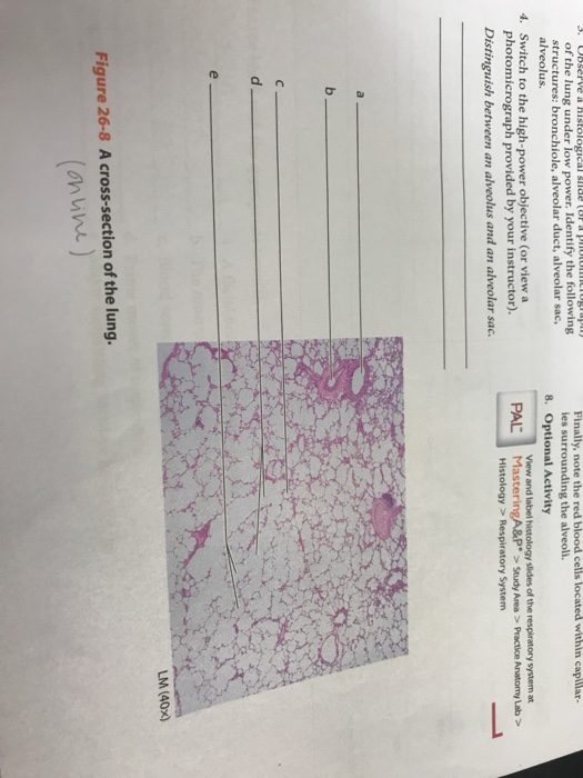 Solved: Of The Lung Under Low Power. Identify The Followin ...