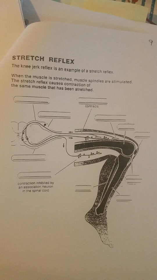 Solved: STRETCH REFLEX The Knee Jerk Reflex Is An Example