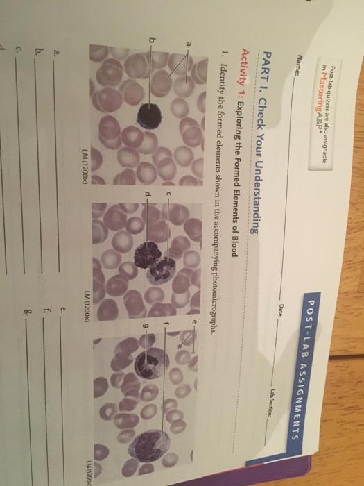 POST-LAB ASSIGNMENTS PART I. Check Your Understanding Activity 1: Exploring the Formed Elements of Blood LM (1200x) LM (1200x) g.