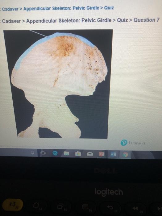 Solved: Cadaver> Appendicular Skeleton: Pelvic Girdle > Qu