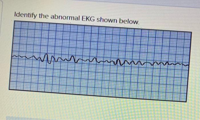 Identify the abnormal EKG shown below.