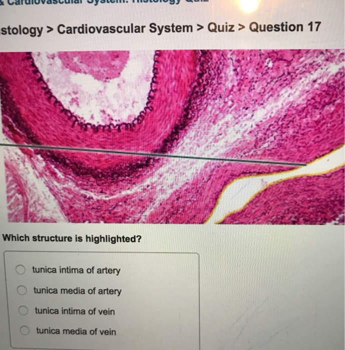 Solved: Stology> Cardiovascular System > Quiz> Question 17 ...
