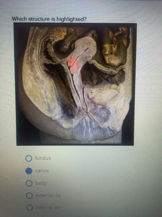 Solved Which Structure Is Highlighted Funds Cervix Body