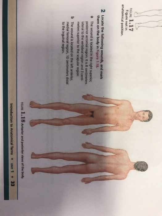 Solved Rigure 117 Figure Not In Anatomical Position 2 L
