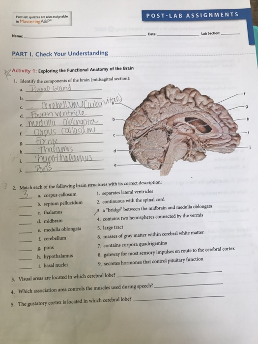 Solved  Identify The Components Of The Brain  Midsagittal