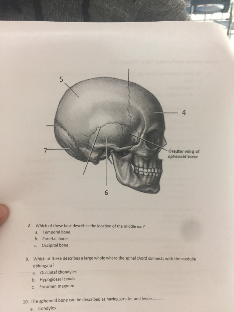 Solved 4 Gre Ater Wing Of Sphenoid Bone 6 Which Of These
