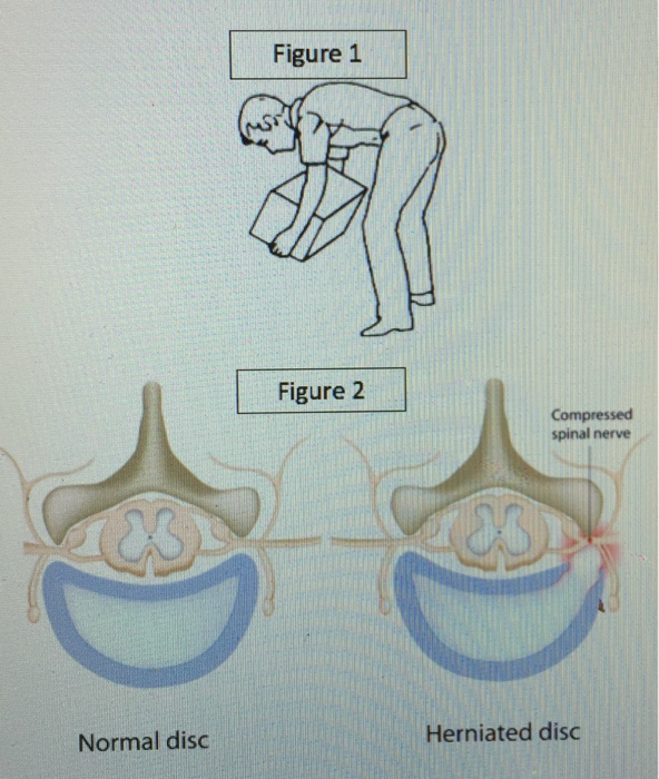 Solved What Is The Structure Of A Normal Intervertebral D