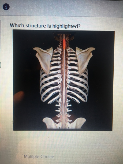 Which structure is highlighted? Multiple Choice