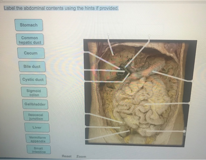 Solved Label The Abdominal Contents Using The Hints If Pr
