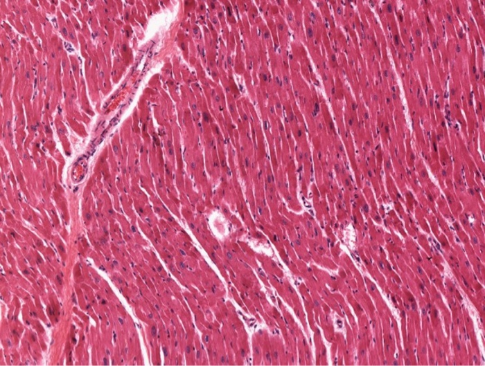 Solved Identify The Notable Structures In The Cardiac Mus