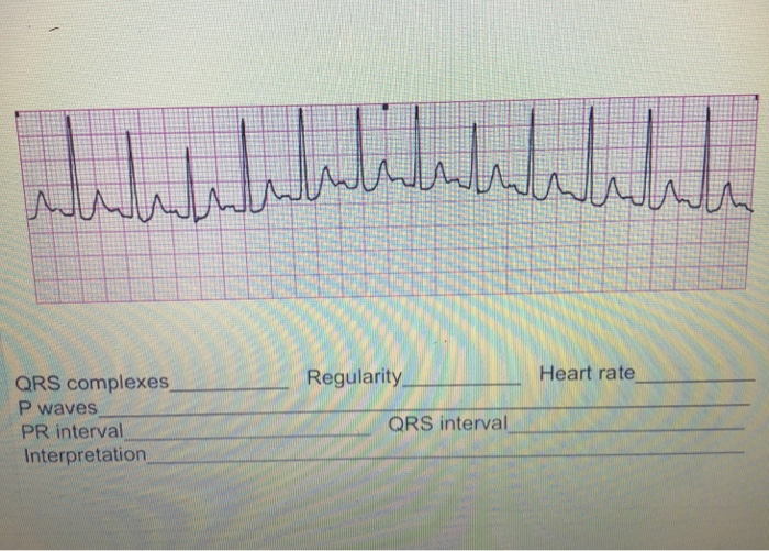 Regularity Heart Rate QRS Complexes P Waves PR Int ...