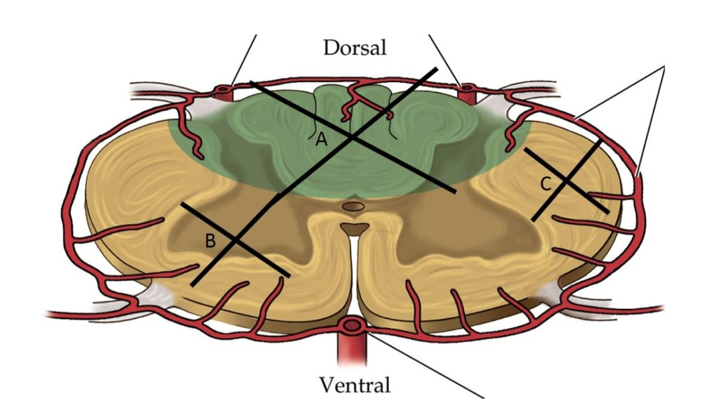 Solved The Slide Has A Cartoon Of The Spinal Cord With 3
