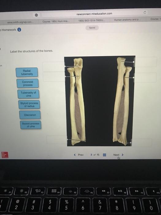 Solved Course 1 18su Bio 1314 Tx020 Human Anatomy And P