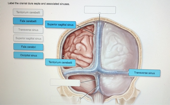 Solved: Label The Cranial Dura Septa And Associated Sinuse ...