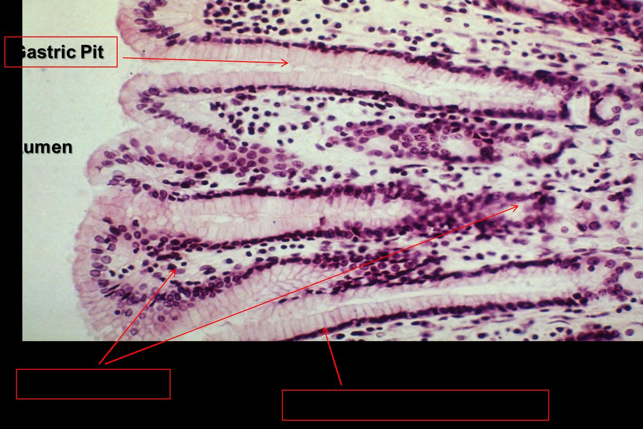 Gi Histology Slides Lab Flashcards Chegg Com