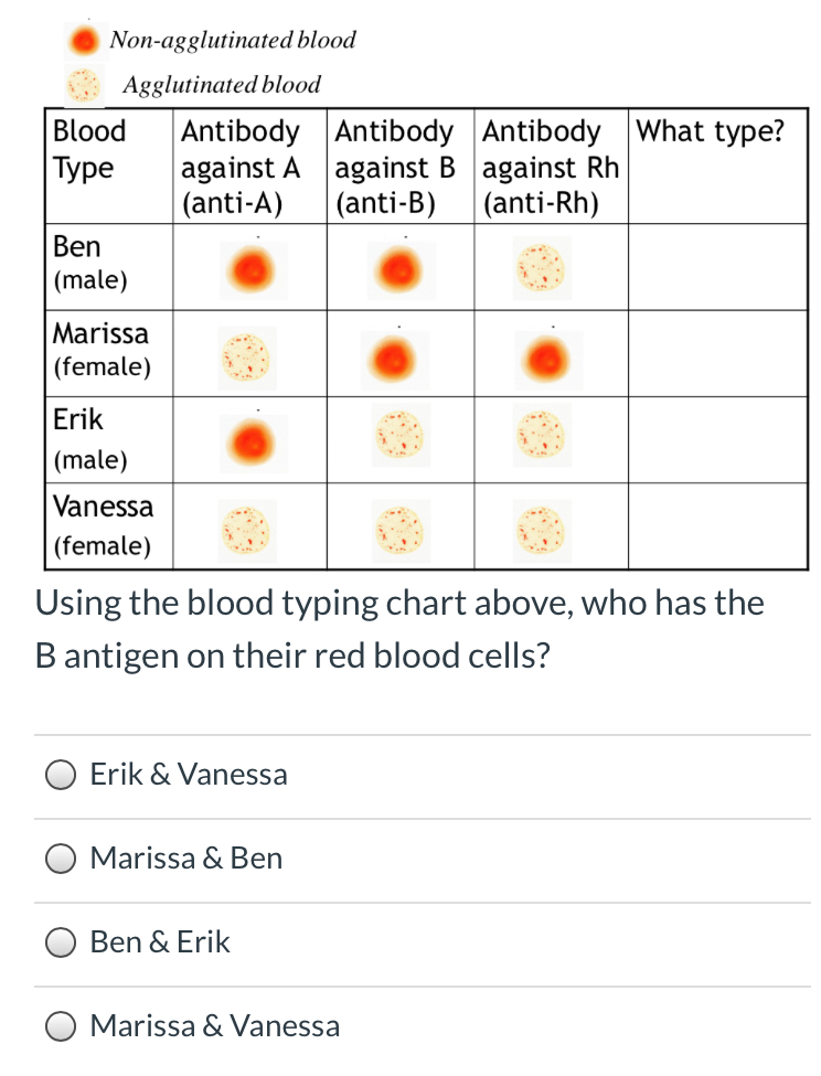 Solved: 1. What Determines Your Blood Type? (A)The Protein... | Chegg.com