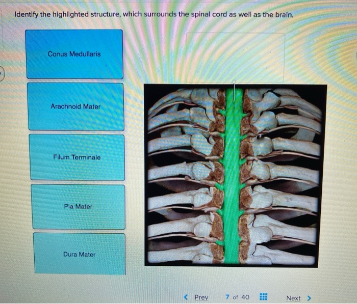 Solved Identify The Highlighted Structure Which Surround Chegg Com At the point where the pia mater reaches the conus medullaris or medullary cone at the end of the spinal cord, the membrane extends as a thin filament called the filum terminale or terminal. identify the highlighted structure