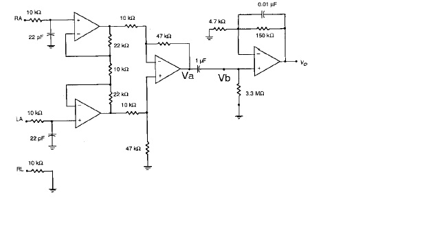 A Circuit Consist Of An Instrumentation Amplifier ... on astable multivibrator schematics, modem schematics, orange amp schematics, guitar schematics, current-to-voltage converter, ulf receiver schematics, operational amplifier applications, wire schematics, low-noise amplifier, audio circuit schematics, motor schematics, rf power amplifier, fully differential amplifier, computer schematics, robot schematics, crossover distortion, charge transfer amplifier, operational transconductance amplifier, current-feedback operational amplifier, isolation amplifier, radio schematics, direct coupling, transformer schematics, tube schematics, electronic circuit schematics, speaker schematics, valve schematics, generator schematics, programmable-gain amplifier, negative feedback amplifier, ic circuit schematics, heathkit schematics, distributed amplifier, led schematics,