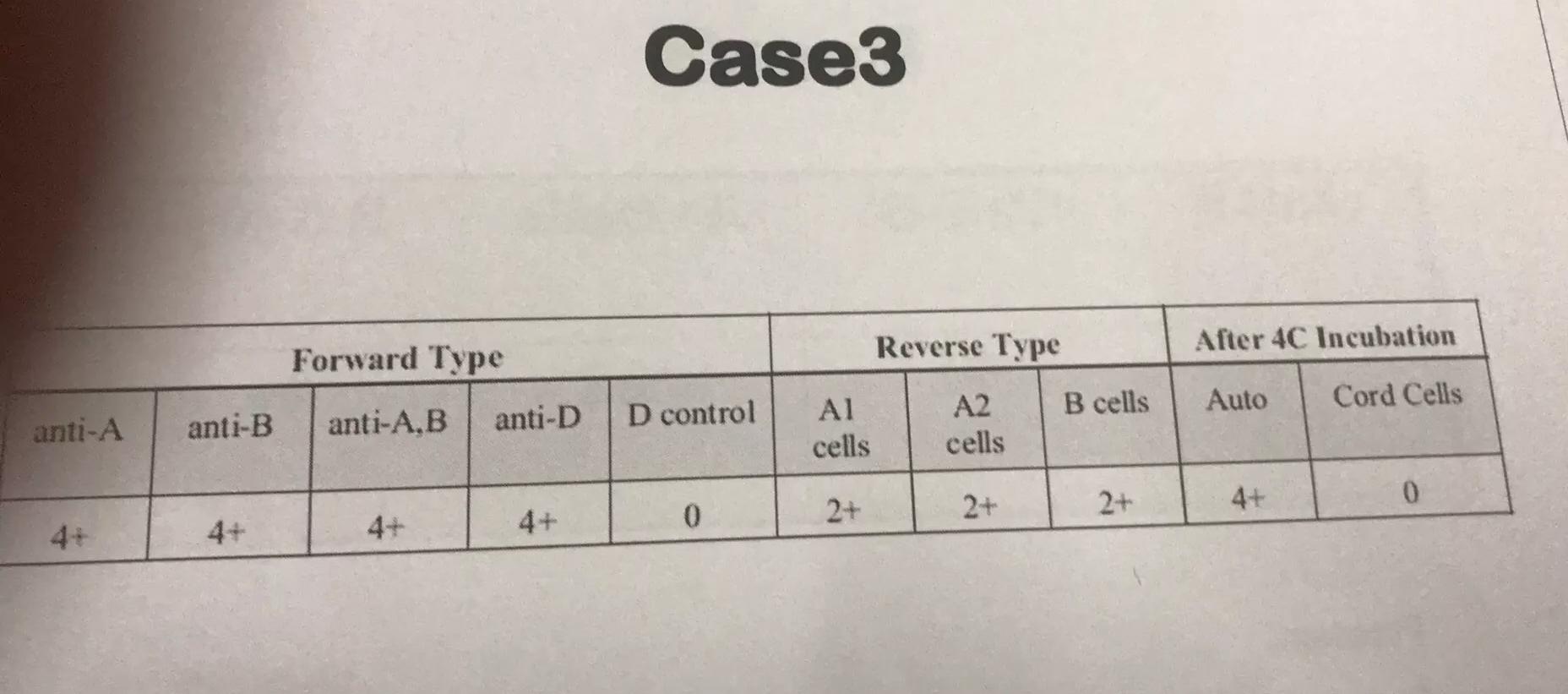 Case3 Reverse Type After 4C Incubation Forward Type Auto B cells Cord Cells anti-D anti-B D control anti-A.B anti-A Al cells