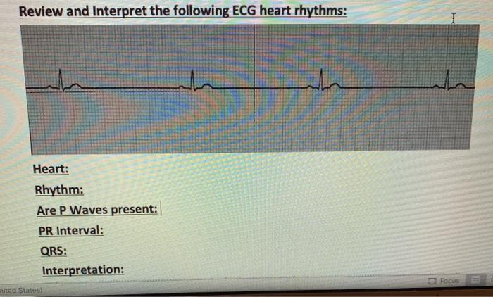 Review and Interpret the following ECG heart rhythms: the Heart: Rhythm: Are P Waves present: PR Interval: QRS: Interpretatio