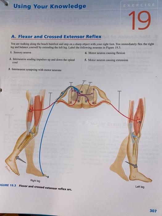 Solved Using Your Knowledge Exercise 19 A Flexor And Cro Chegg Com