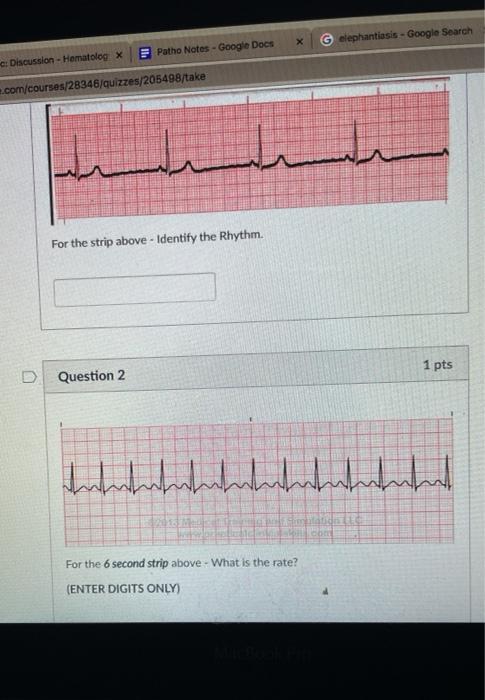 х elephantiasis - Google Search Patho Notes - Google Docs Discussion - Hematolog x ..com/courses/28346/quizzes/205498/take Fo