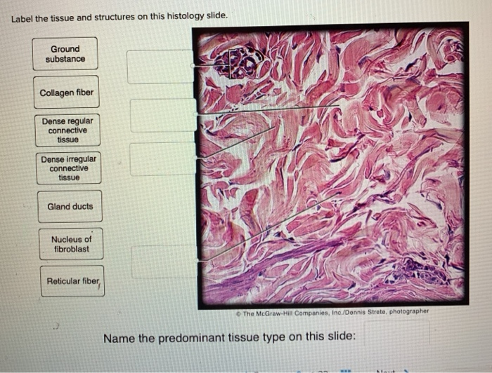 Solved Label The Tissue And Structures On This Histology Chegg Com