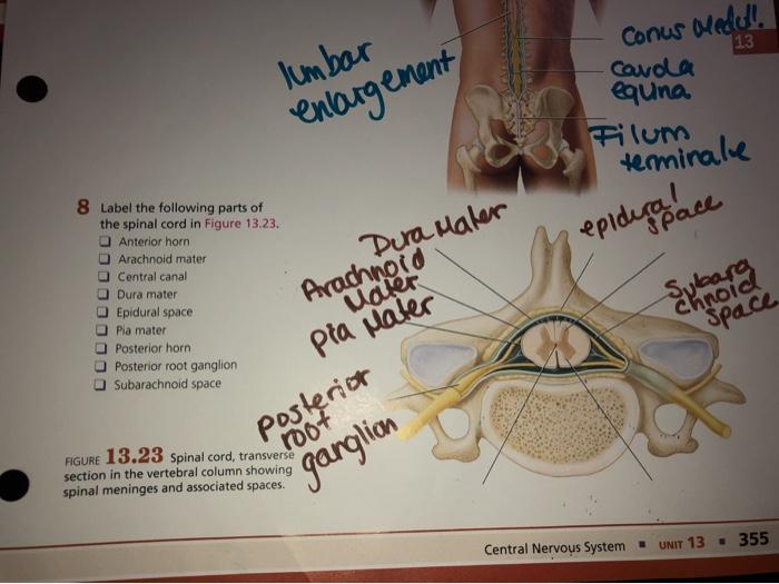Solved Conus Medoll 13 Lumbar Enlargement Carda Eguna Fil Chegg Com Its upper part is called the filum terminale internum and. solved conus medoll 13 lumbar